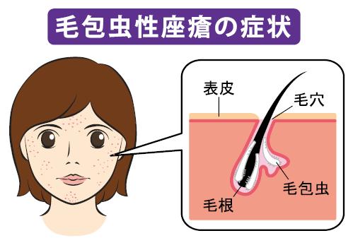 毛包虫性座瘡