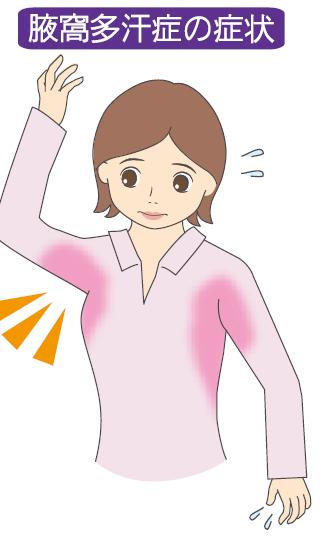 原発性腋窩多汗症
